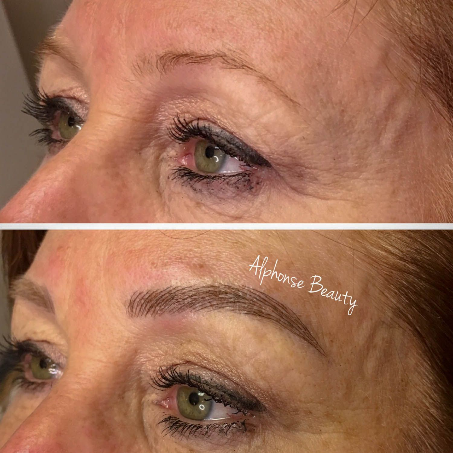 Eyebrow reconstruction obtaining natural looking results from Microblading