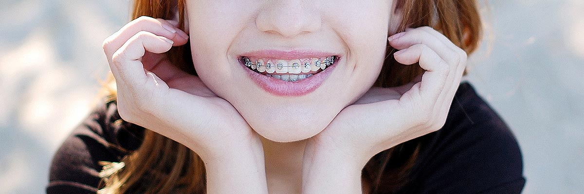 Orthodontist San Francisco