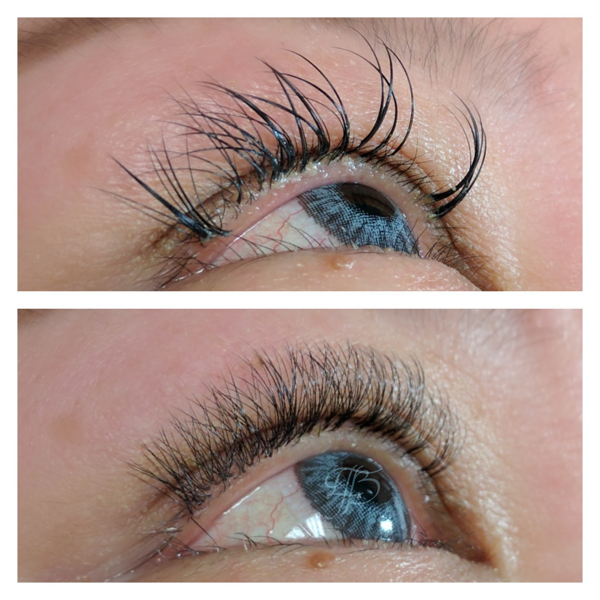 before:  very heavy, long volume lash extensions by another artist, extreme oil buildup & closed fans from lack of cleansing   after:  Extension removal, deep lash line & lid cleansing, very light volume full set appropriate for guest's natural lash length & strength by The Studio