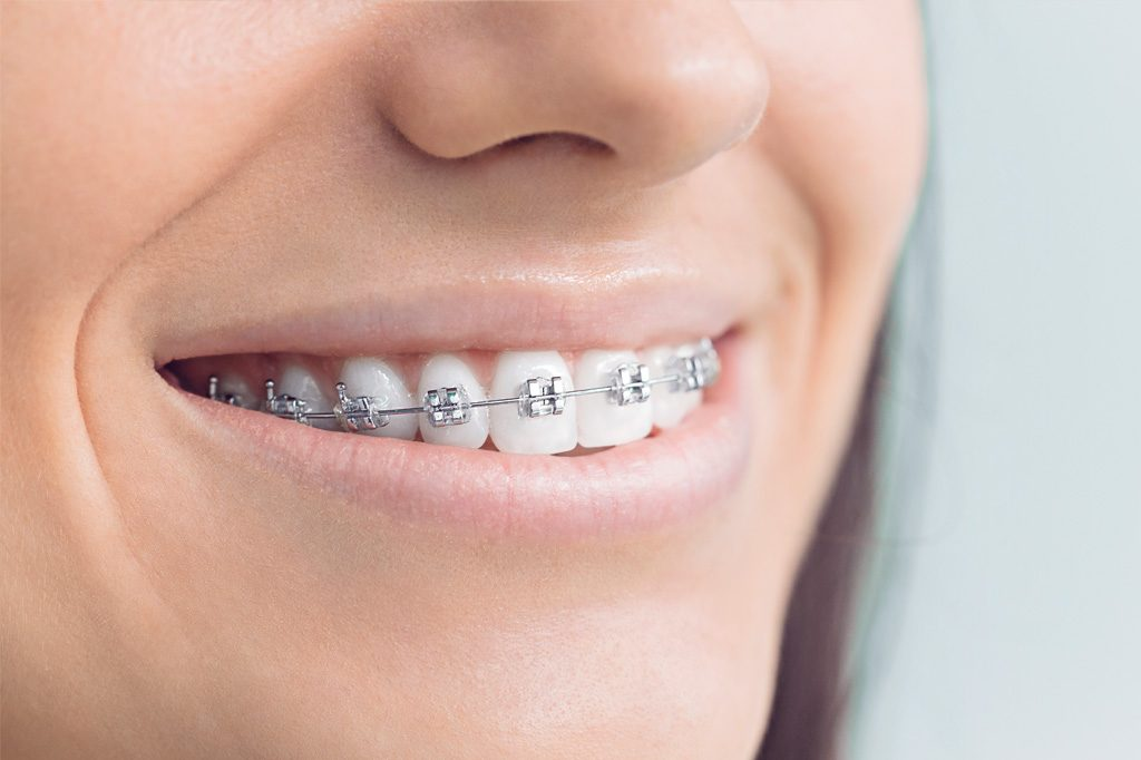 Dr-Carlin-Weaver-Specializes-In-metal-braces
