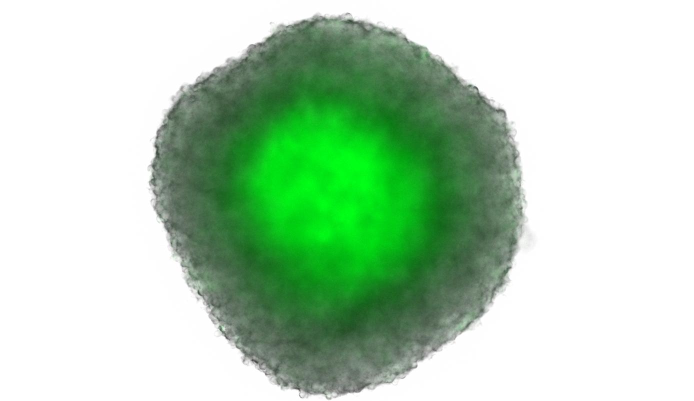Program 2: Hypoxia-driven drug resistance