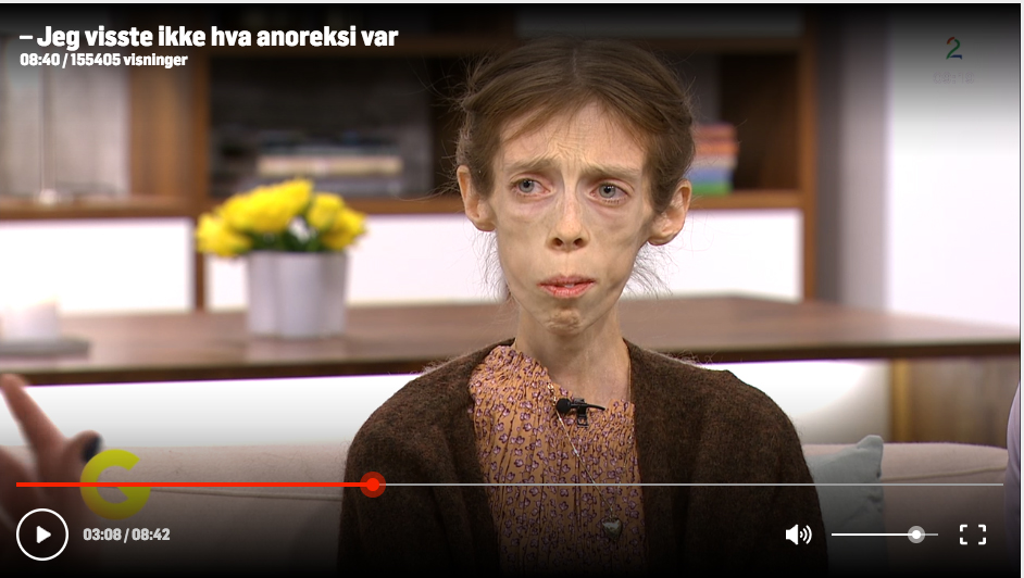 Lene Marie TV2 - (30) stopped eating when she was ten years old. She hopes that photography can be the way out of her disease. Meet her with Espen Wallin in this clip from Norwegian TV2.