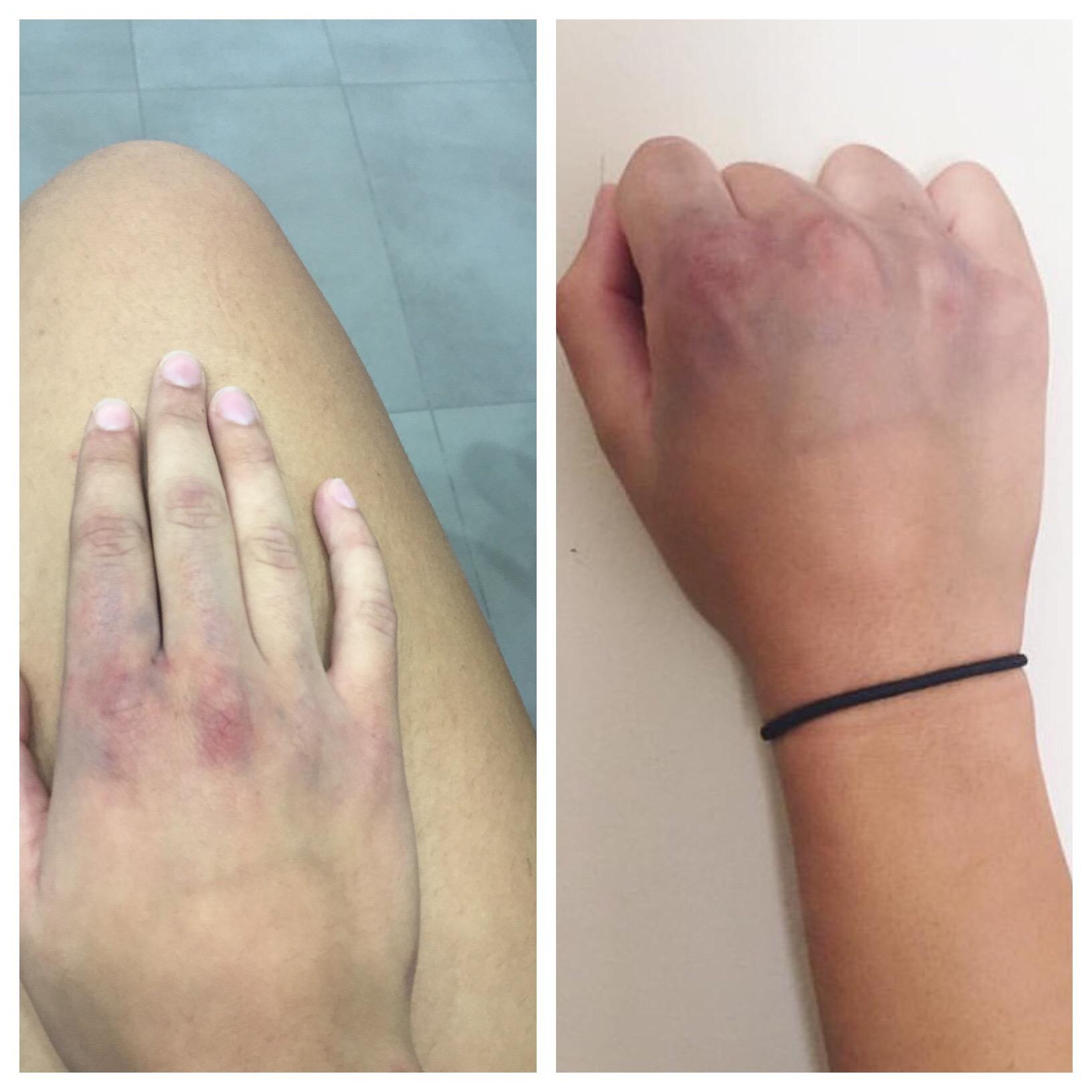 bruised hand.JPG