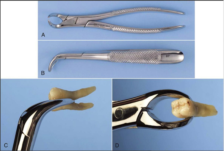 Cowhorn - for mandibular molars