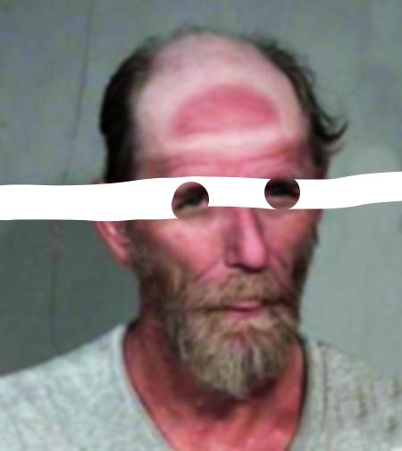 man_with_hat_suntan_line.jpg