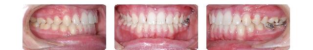 toothbondingporltand.jpg