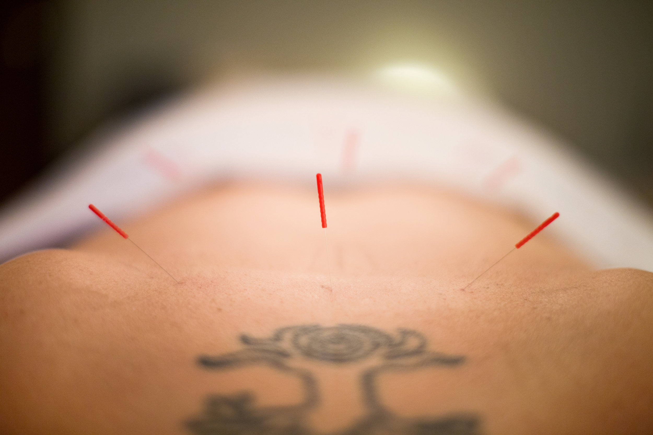 acupuncture doula Knoxville pregnancy.jpg