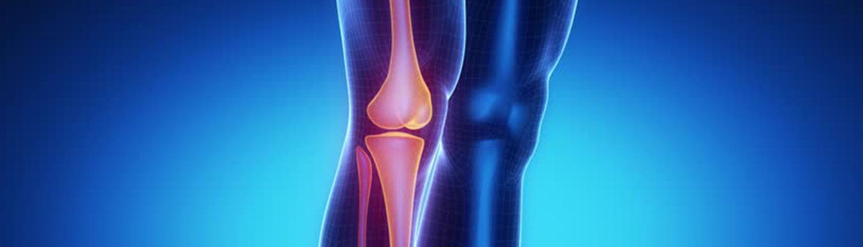 3-villa-stuart-servizi-sanitari-ortopedia-ginocchio.jpg