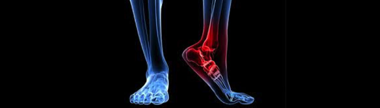 Bologna:ricostruita una caviglia con una protesi stampata in 3D
