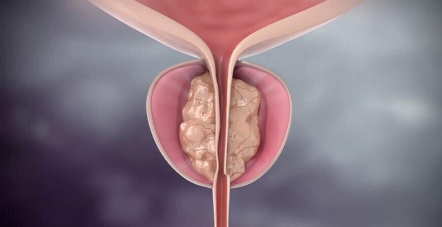 come funziona lintervento alla prostata con laser spa