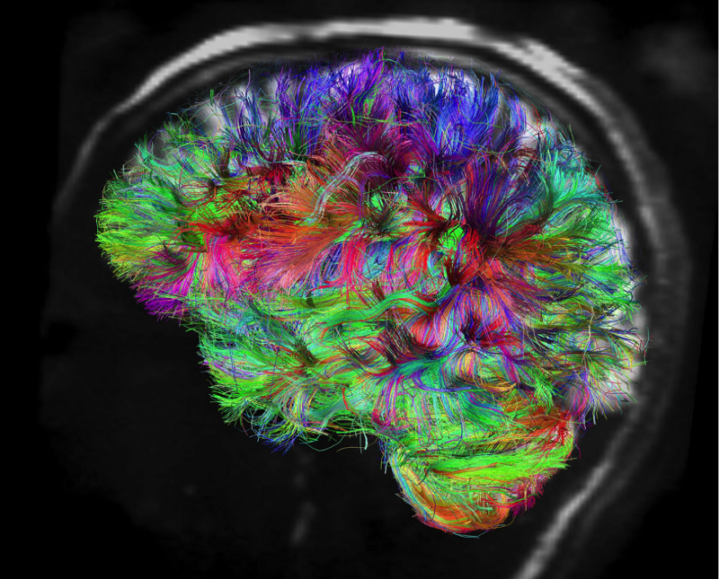 Deep Change Project_Brain by Design_66 Days On The Neural Road Less Traveled_Image 1.png