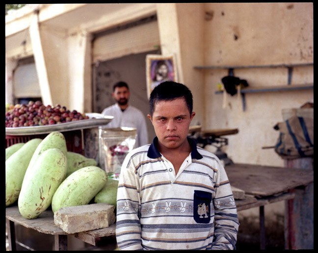 Child with down syndrome in southern Iraq. June 2003.