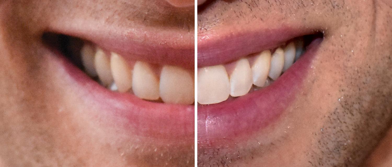 100 Uv Free Led Teeth Whitening In Bellevue Seattle Sun Light Spa