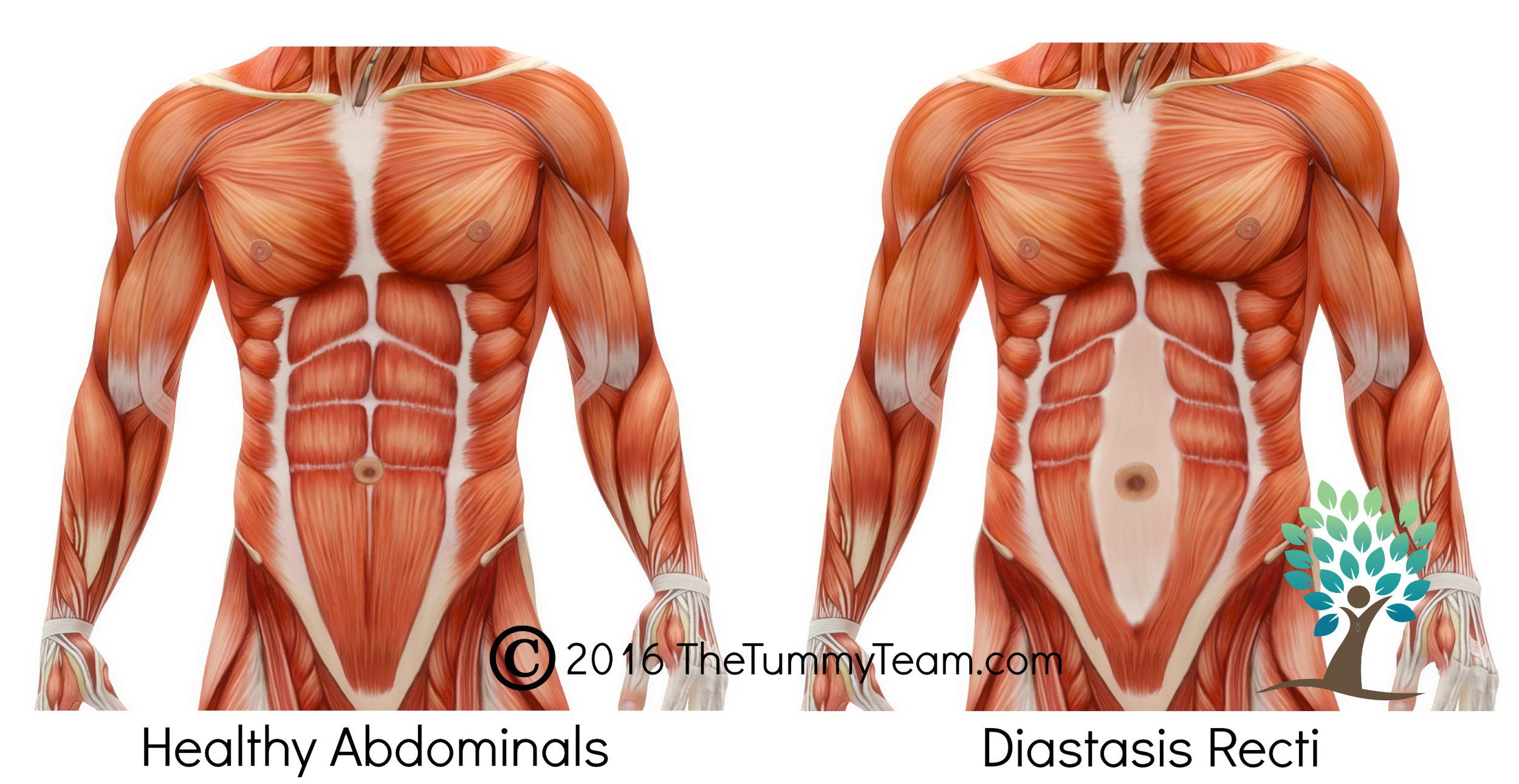Diastasis Graphic.jpg