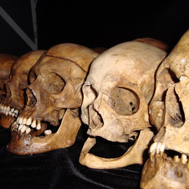 If anybody ever thought all skulls look alike, here's something to change their mind! The second skull on the right had lost all of their teeth in life. The bones resorbed and filled in the spaces where the teeth were, so that's the mandible is so thin, and the distance under the nasal aperture is so short.  #skull #humanskull #forensics #forensicart #forensicartist #forensicscience#skullartist #iloveskulls #womeninstem #womeninscience #artcareer #morbidart #truecrime #realskulls #toothless #oldskull #newskull #skullart