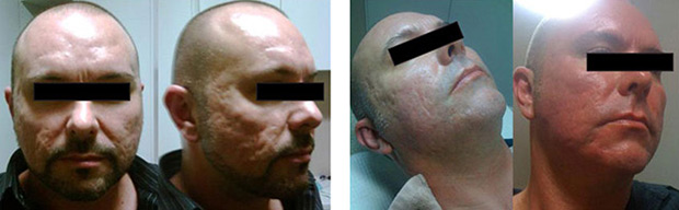 (left)  Adam before any treatments, severe scarring from acute cystic acne.  (right)  After six treaments, the depth of scarring has already been dramatically reduced.  (below)  After 10 treaments and in conjuction witht the use of Skinstitut products, scarring is minimal.Skin is rejuvenated, softer and smoother.