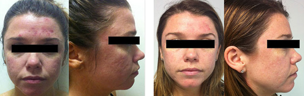 (left)  Before any treatments.  (right)  Results already visible after one treatment. Also in conjunction with the use of Skinstitut products