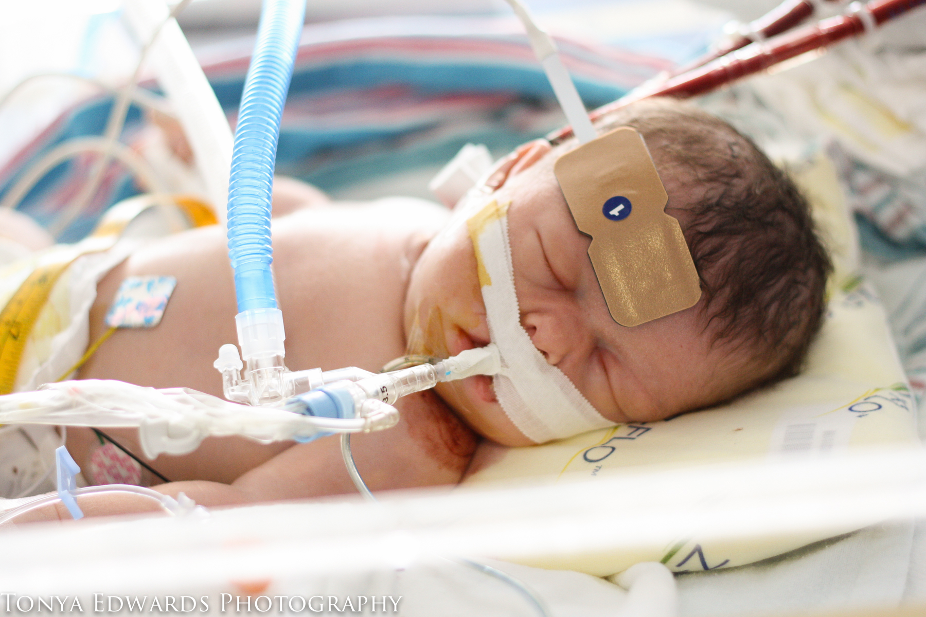 Tonya Edwards   Oroville Photographer   baby in PICU on ECMO