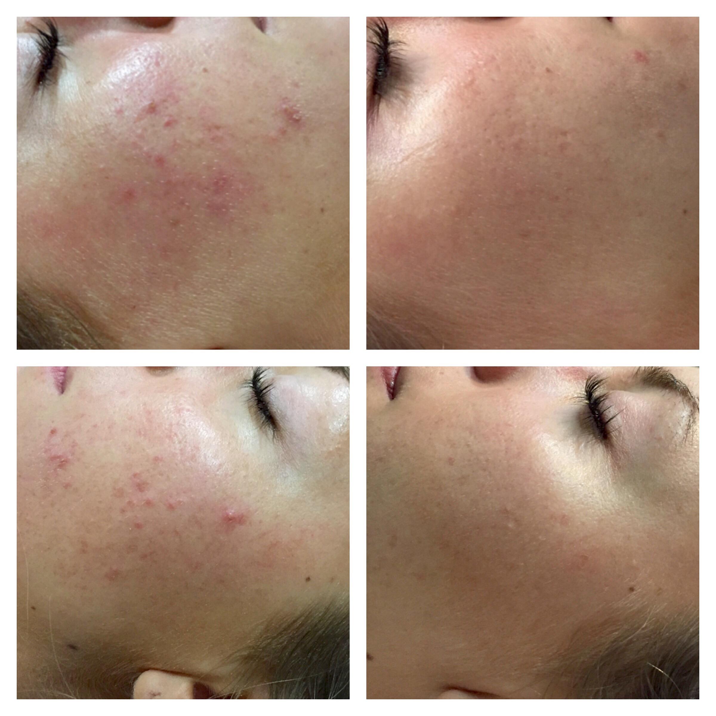 Elite Skin acne bilder.jpg