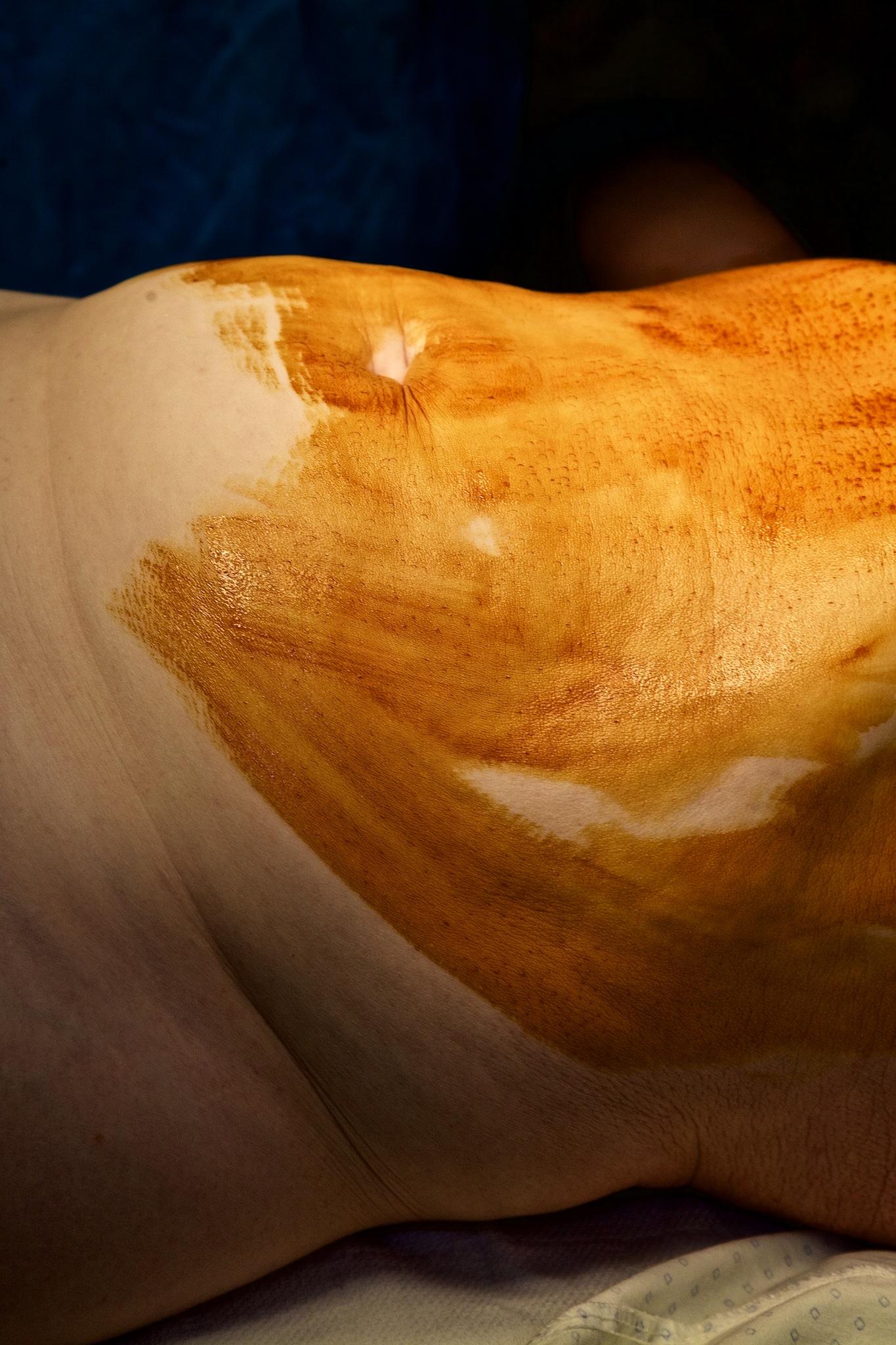 Malagasy Albino