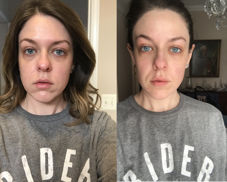 Gua Sha Before and After.PNG