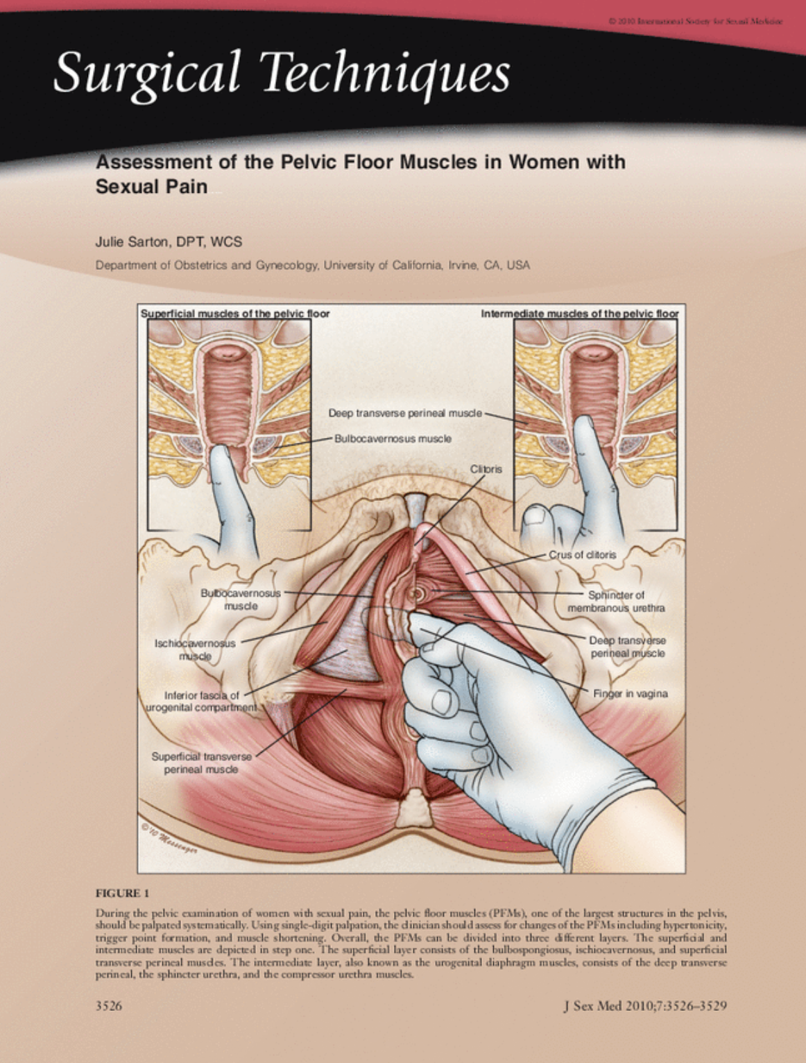 Figure 1  During the pelvic examination of women with sexual pain, the pelvic floor muscles (PFMs), one of the largest structures in the pelvis, should be palpated systematically. Using single-digit palpation, the clinician should assess for changes of the PFMs including hypertonicity, trigger point formation, and muscle shortening. Overall, the PFMs can be divided into 3 different layers. The superficial and intermediate muscles are depicted in step one. The superficial later consists of the bulbospongiosus, ischiocavernosus, and superficial transverse perineal muscles. The intermediate layer, also knows as the urogenital diaphragm muscles, consists of the deep transverse perineal, the sphincter urethra, and the compressor urethra muscles.