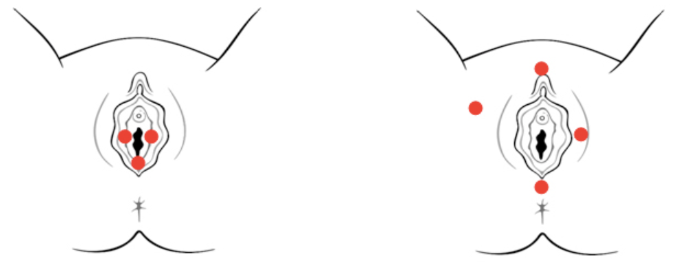 Figure 2: Provoked Vestibulodynia (PVD) (left)  vs. Generalized Vulvodynia (GVD) (right)