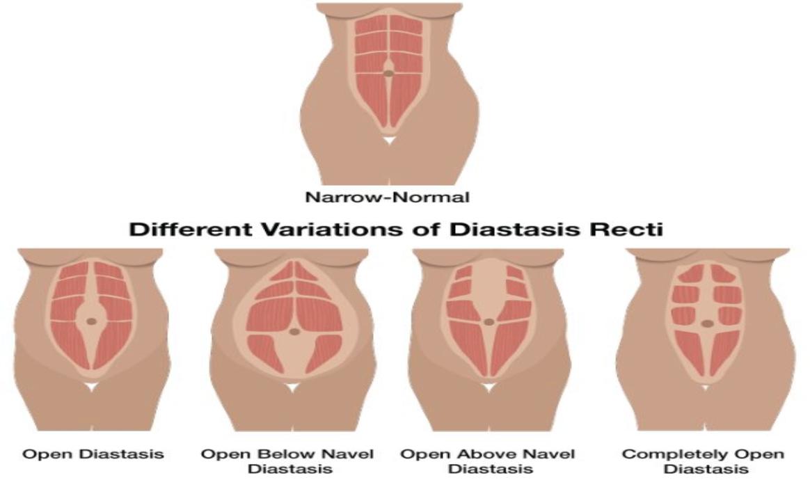diastasis recti treatment california | pelvic floor physical therapy clinic orange county