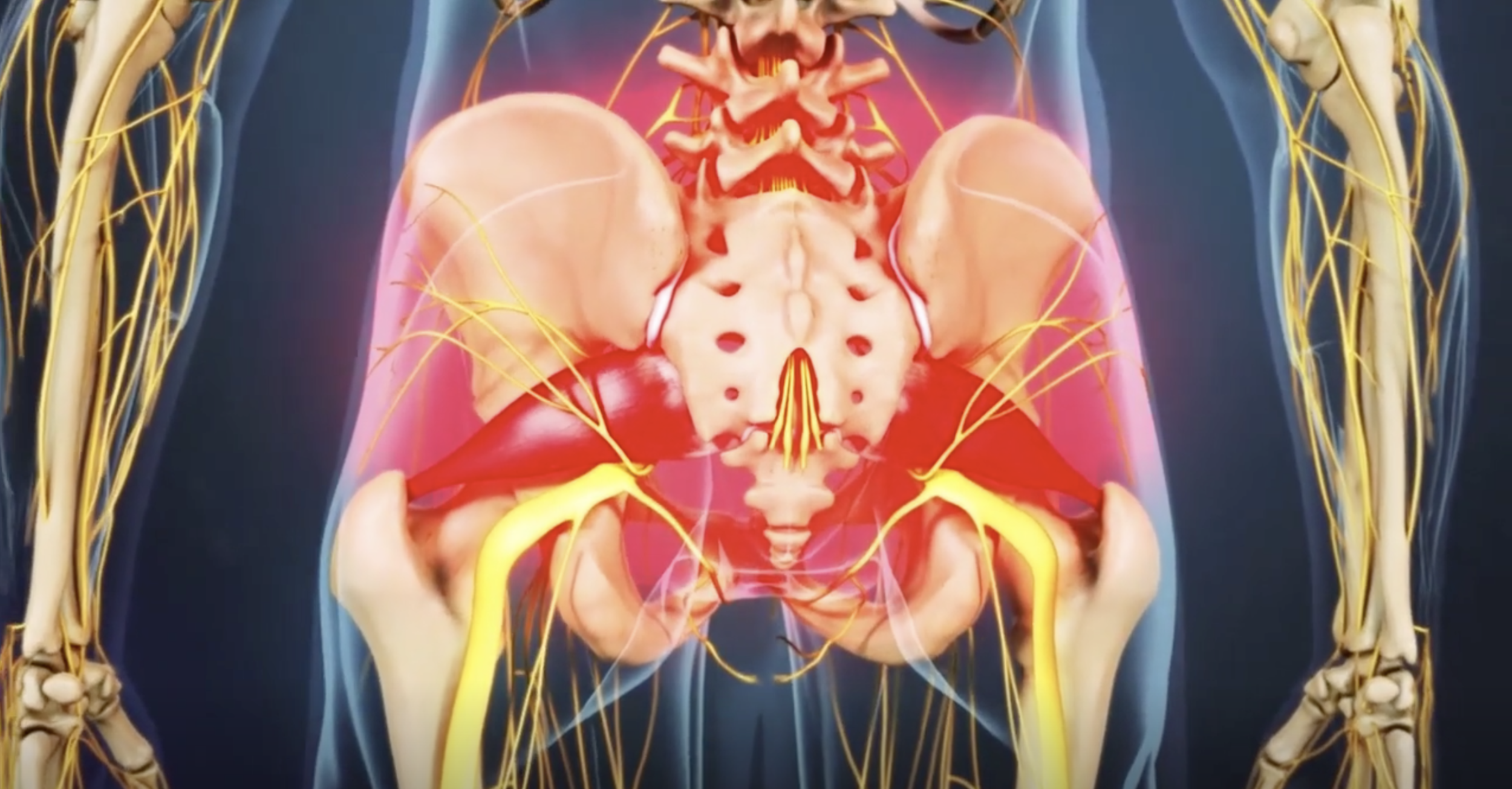 Click this image for a video explaining piriformis syndrome.