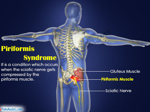 Piriformis syndrome physical therapy treatment