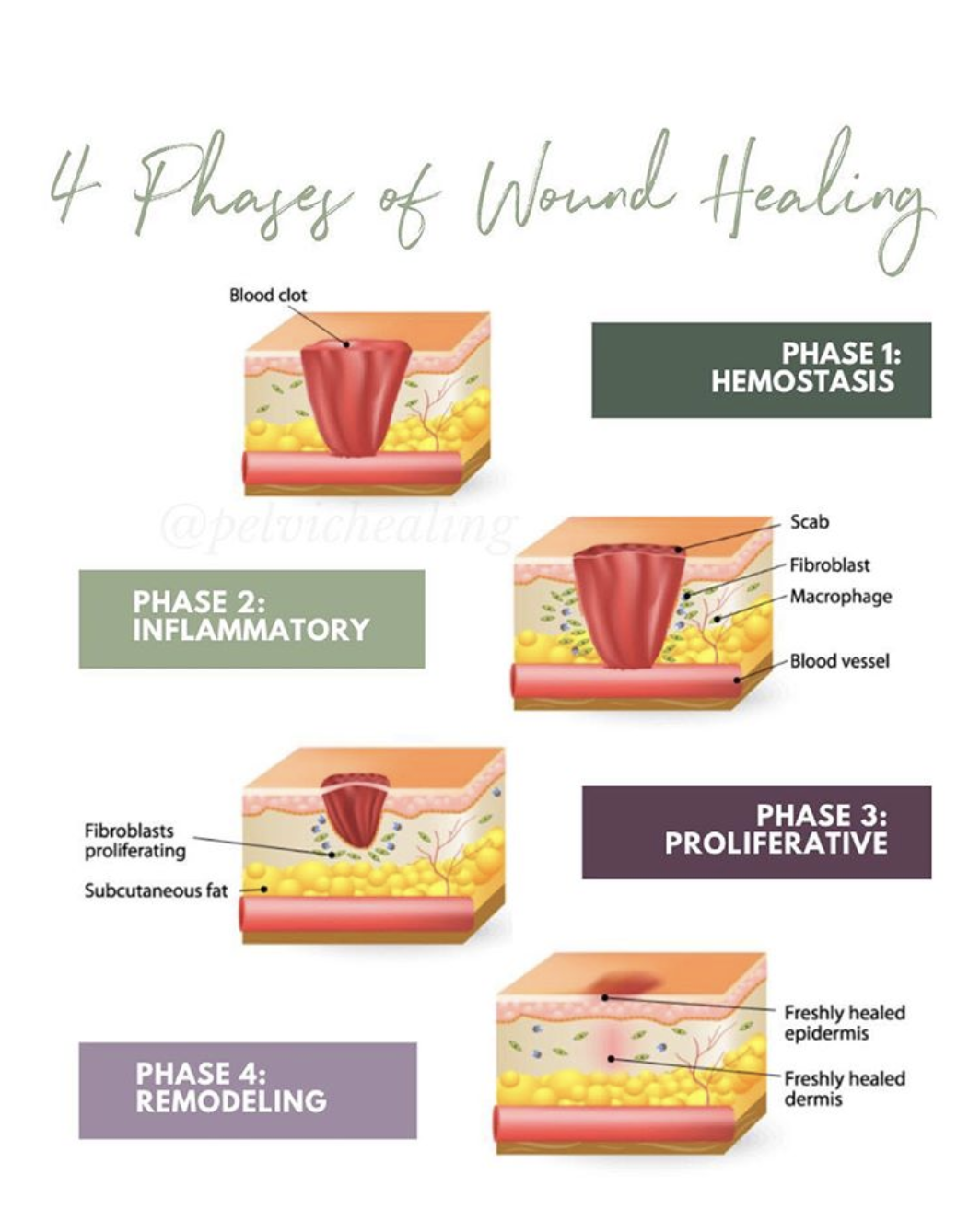 4 Stages of Wound Healing | physical therapy