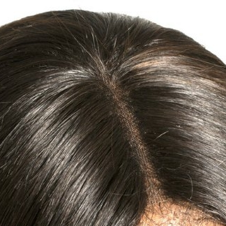 Closures (Crown) - Best application for thinning hair above the parietal ridge.  Can come on lace or silk backing, to look natural while blending with the skin. Creates fullness instantly.1 to 3 months*BEADED, BRAIDED, SEWN (in one application)