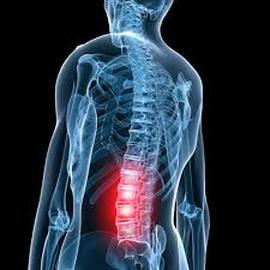 spine back pain.jpeg