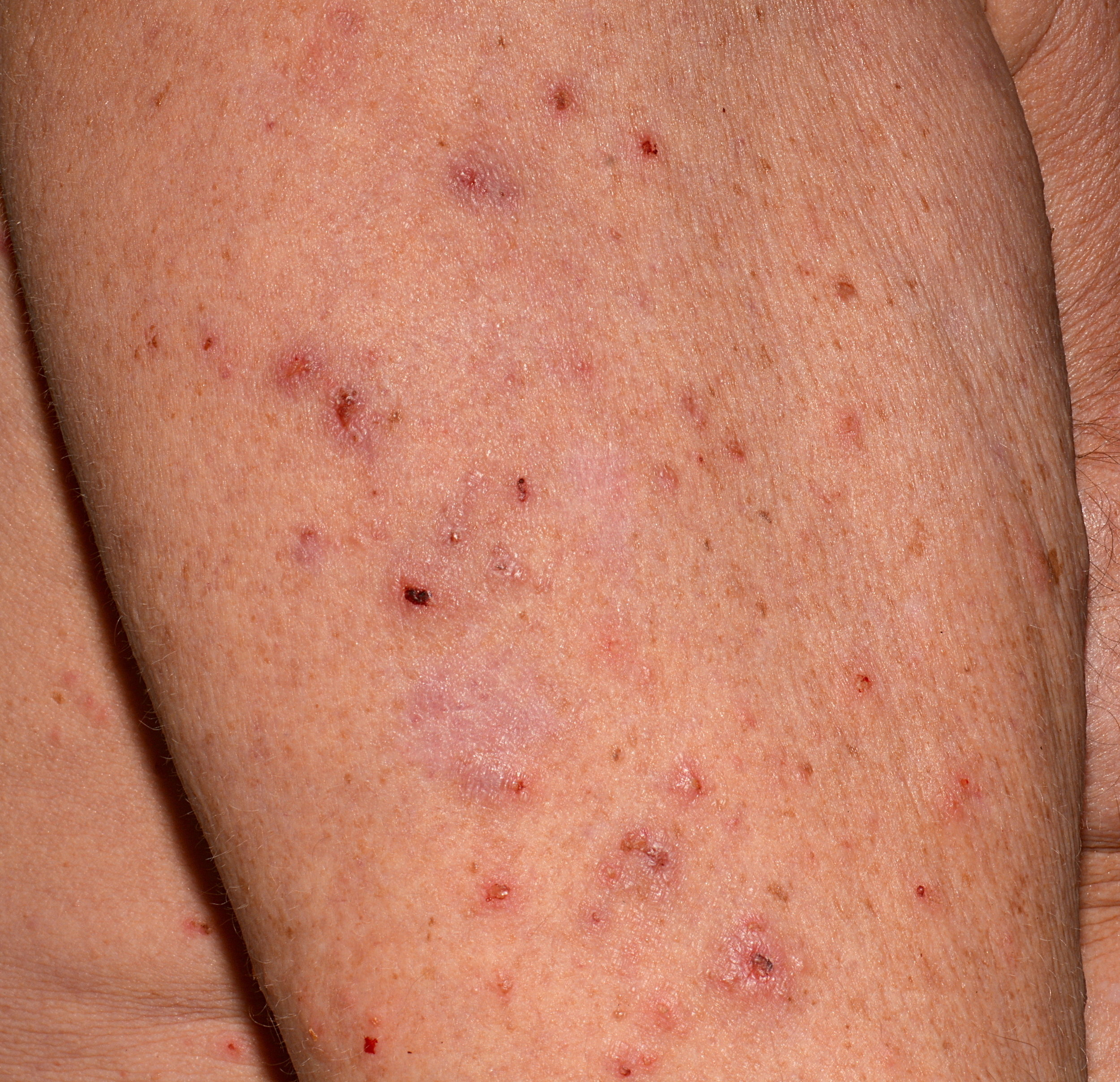 what does scabies bites look like