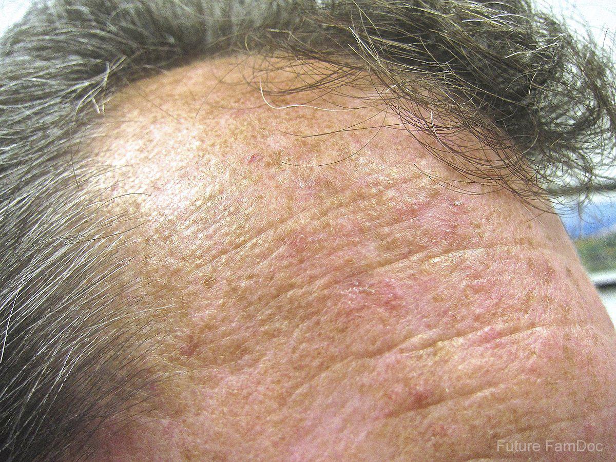 Actinic_keratoses_on_forehead.jpg