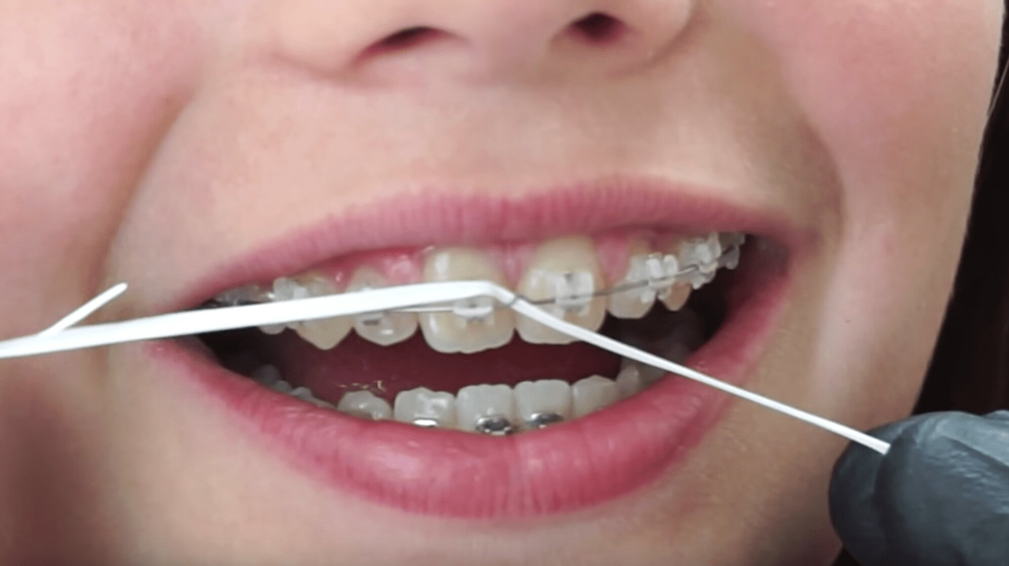 how to use floss threader