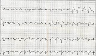 320px-12_Lead_EKG_ST_Elevation_tracing_only.jpg