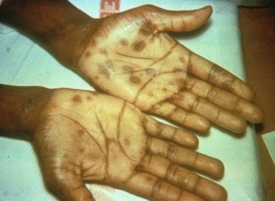 Secondary_syphilis-palmar_rash.png