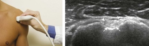 https://clinicalgate.com/shoulder-ultrasound/#s0020