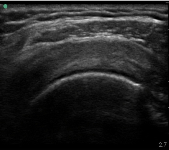 Supraspinatus (normal short axis) https://theultrasoundspace.co.uk