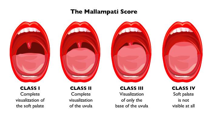 https://www.clinicaladvisor.com/the-waiting-room/mallampati-score-anesthesia-obstructive-sleep-apnea/article/471394/