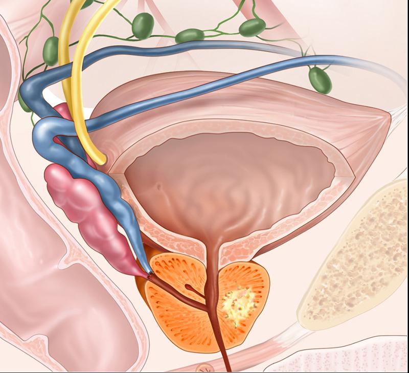 Простатит варикозное расширение простатит тянет в паху у