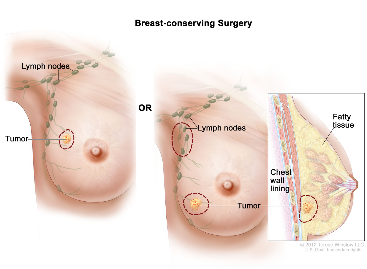 Breast-conserving Surgery