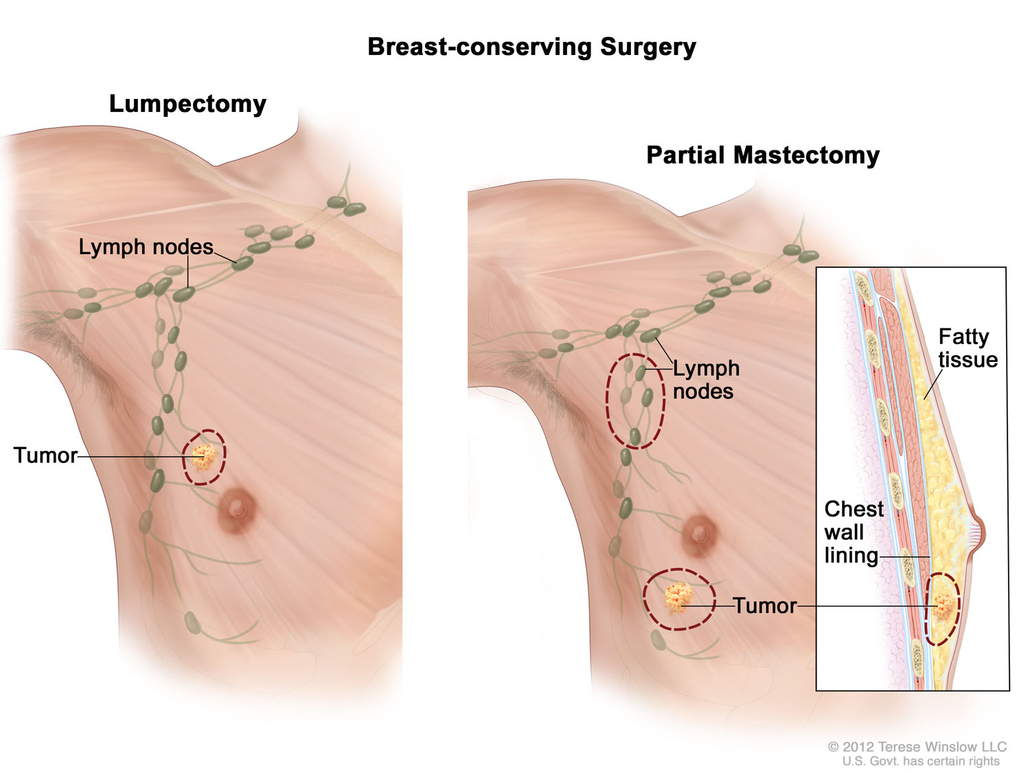 Breast-conserving Surgery Male