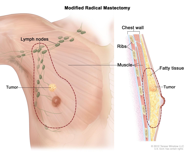 Modified Radical Mastectomy