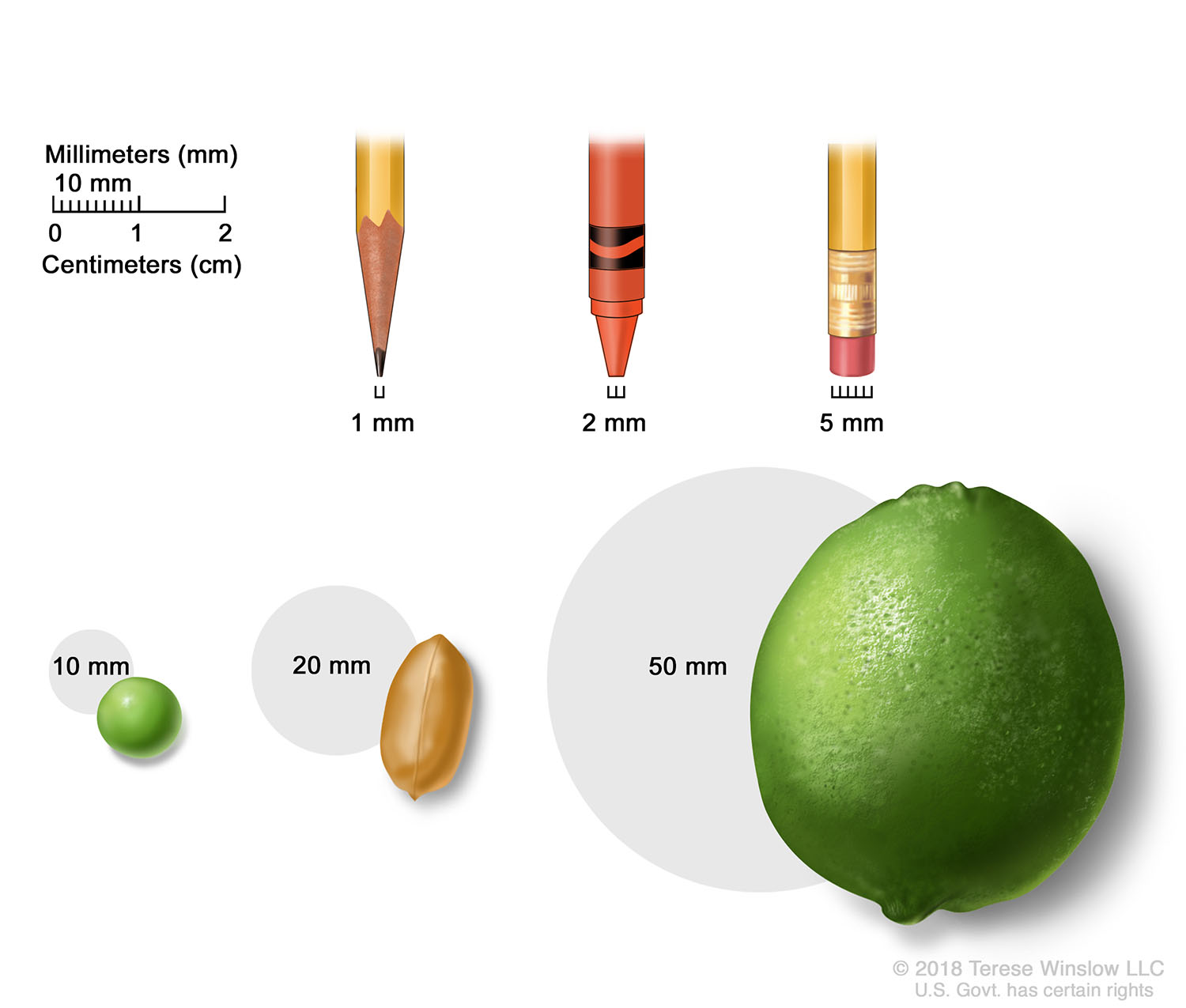 Tumor Sizes in Millimeters and Centimeters