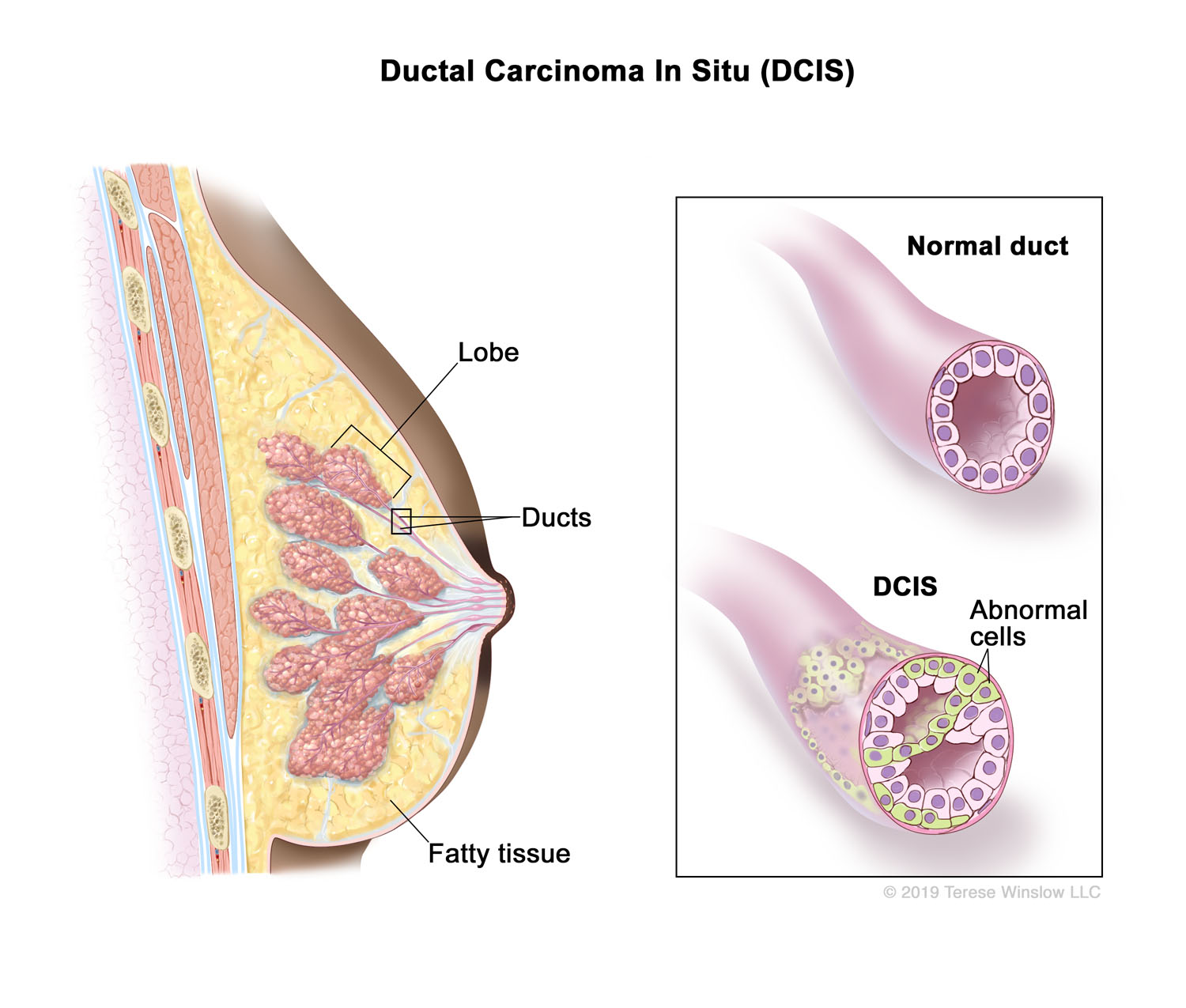 Ductal Carcinoma In Situ (DCIS) (Brown Skin)
