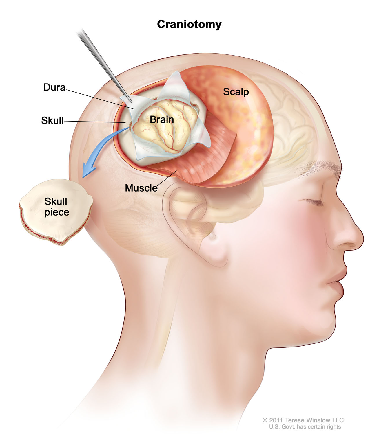 brain-craniotomy-adult.jpg