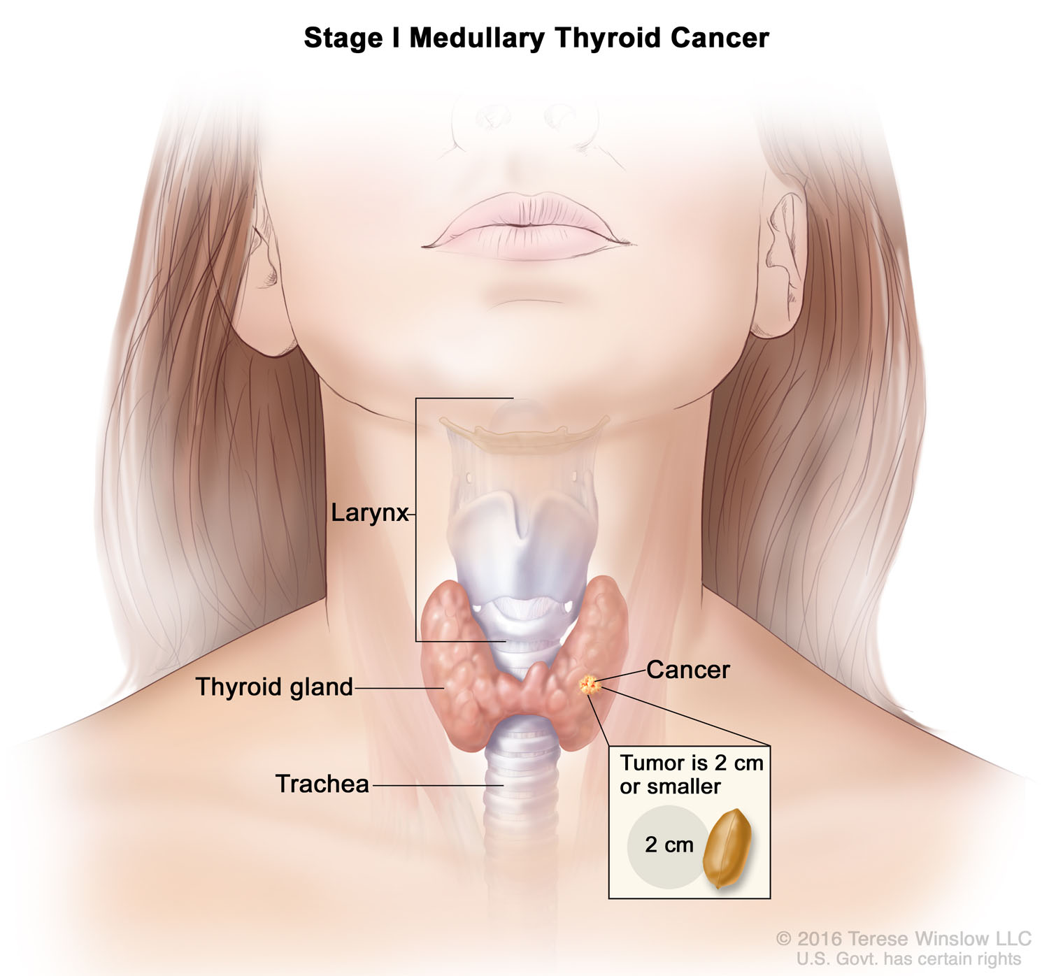 Medullary Thyroid Cancer Stage 1