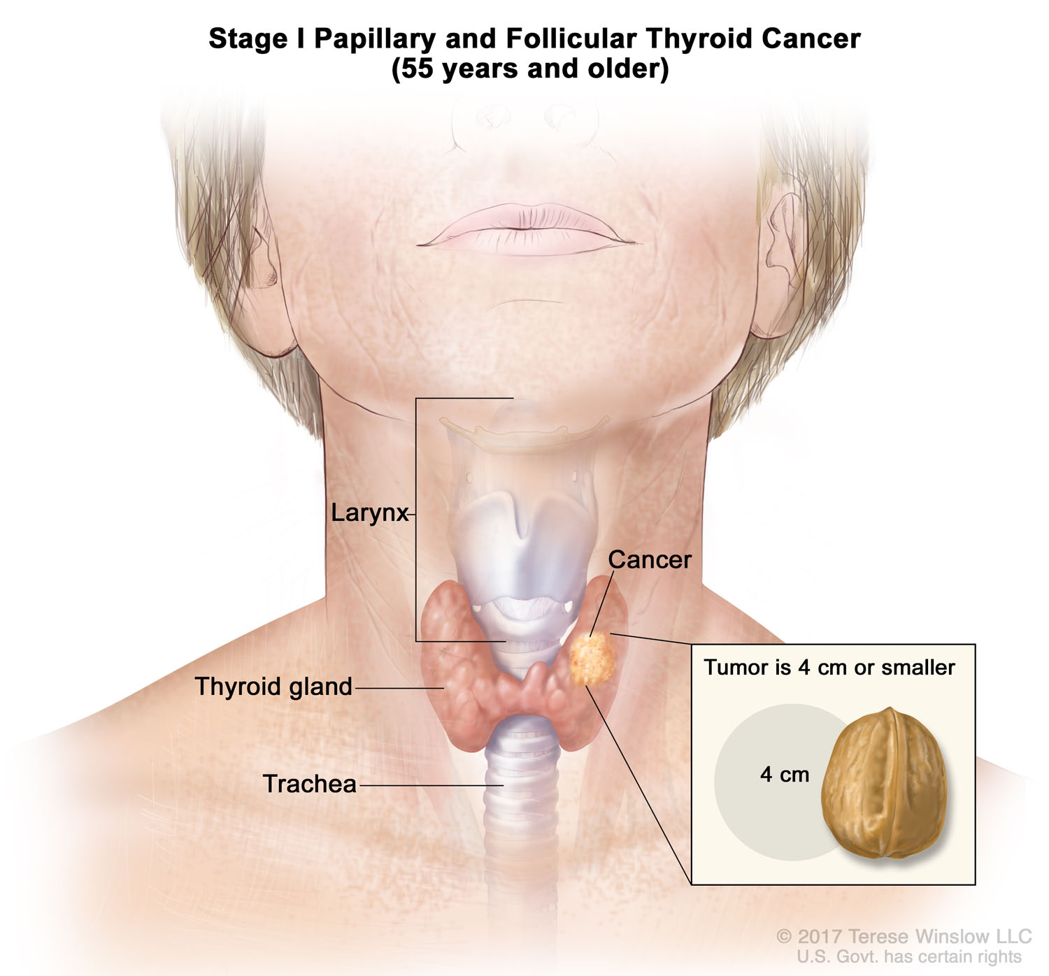 thyroid-cancer-papillary-follicular-stage1-over55.jpg
